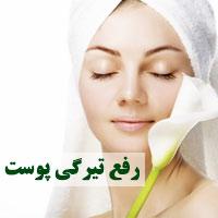 تیرگی پوست و روش های درمان خانگی