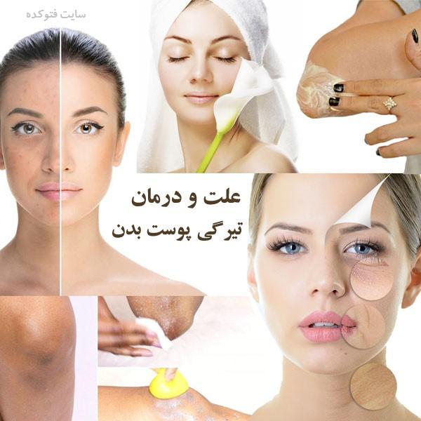 رفع تیرگی پوست صورت و بدن در خانه