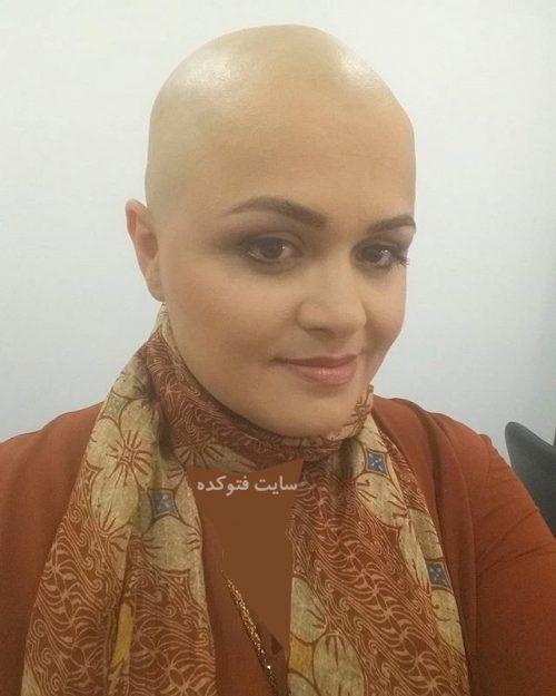 عکس بدون مو و کچل ساناز قاضی زاده من و تو + علت و بیماری