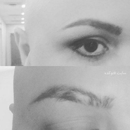 سرطان و بیماری عکس قاضی زاده مجری من و تو + همسرش