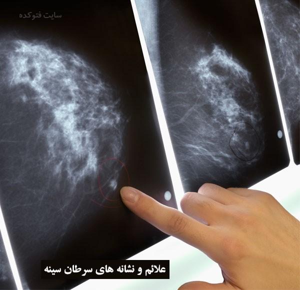 علل ایجاد سرطان سینه چیست با عکس