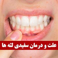 علت سفید شدن لثه ها + 10 درمان سفیدی لثه ها