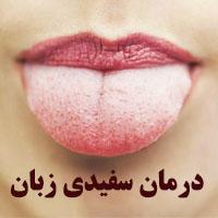 علت سفیدی زبان + 18 درمان سفیدی زبان با طب سنتی