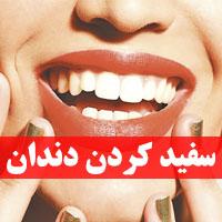 سفید کردن دندان | 40 روش جرم گیری دندان ها در خانه