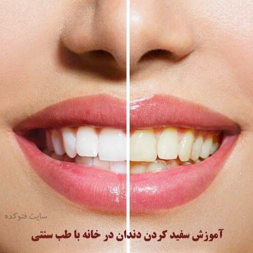سفید کردن دندان با طب سنتی در خانه