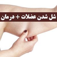 علت شل شدن عضلات بازو تا شکم و دست + 13 روش درمان