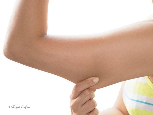 علت و درمان شل شدن عضلات