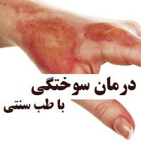 درمان سوختگی پوست با طب سنتی در خانه