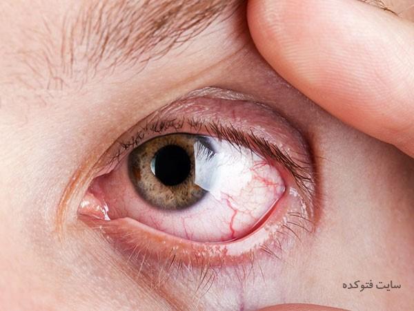 سوزش چشم با 32 علت و روش های درمان