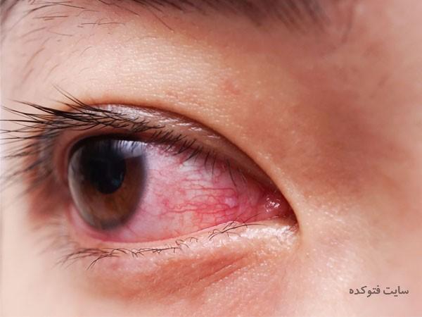 علت سوزش چشم با ریزش اشک چیست