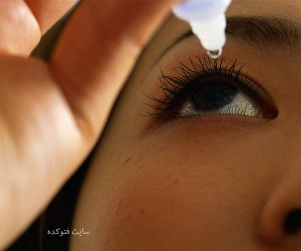 راه و روش درمان سوزش چشم