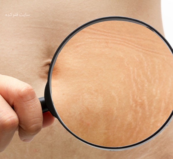 راه و روش درمان ترک های پوست شکم