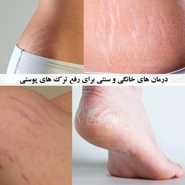 درمان ترک های قرمز روی پوست با طب سنتی