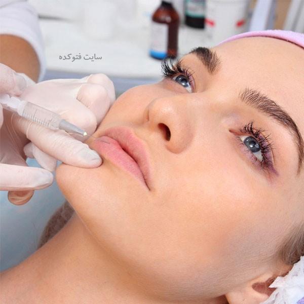 مراقبت های بعد از تزریق ژل لب