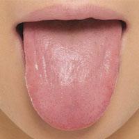 بیماری های زبان دهان + علائم ظاهری بیماری در زبان