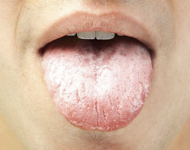 بیماری زبان سفید پنیری زبان دهان