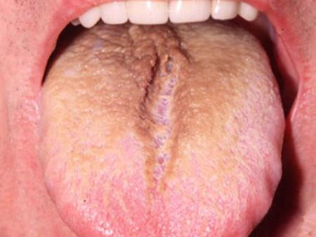 بیماری زبان با پرزهای قهوه ای یا سیاه