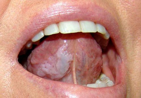 بیماری لکه های سفید کوچک زبان دهان
