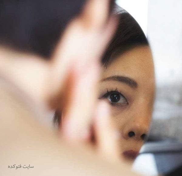 روش های درمان ورم صورت