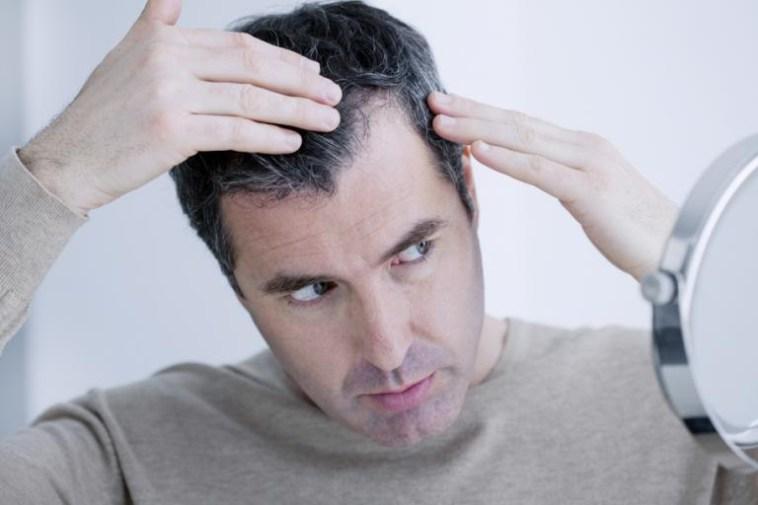 علت سفید شدن مو + جلوگیری و رفع سفیدی مو